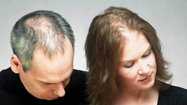 Photo of Saç Dökülmesi İle Mücadele, Çözümü
