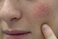Photo of Seboreik Dermatit Nedir?