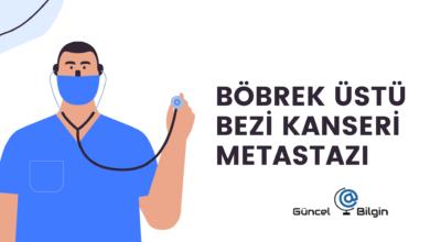 Photo of Böbrek Üstü Bezi Kanseri Metastazı